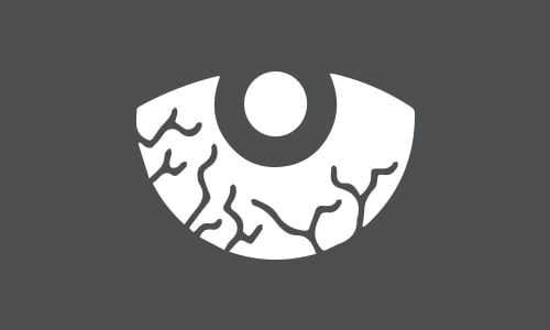 Tyoturvallisuus_silmavammat_500x300